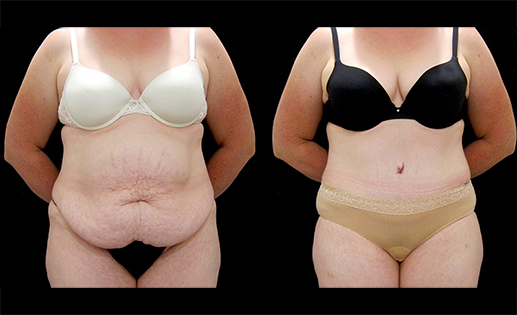 Before & After Images of an Abdominoplasty