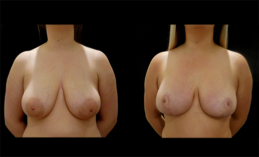 Before & After images of a Breast Reduction