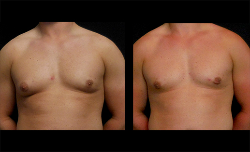 Before & After images of Gynecomastia Surgery